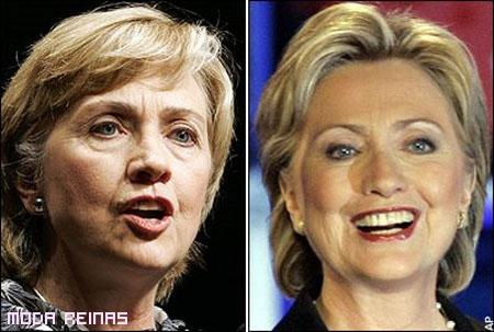 Antes-y-despues-Hilary-Clinton-antiarrugas