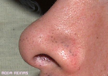 puntos-negros en la cara